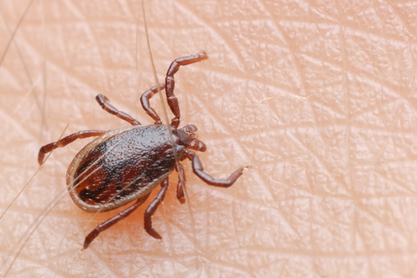 How to Safely Remove Ticks